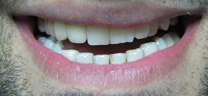 Crooked Teeth Correction - After