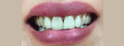 Contouring and composite bonding - Before