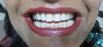 Zoom Teeth Whitening in Delhi