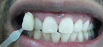 Zoom Advanced Teeth Whitening