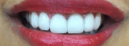 upper 6 porcelain veneers After