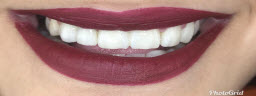 Smile Makeover with Metal Free Crowns and Teeth Whitening - After