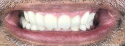 Full Mouth Rehabilitation with Metal Free Zirconia Crowns n Bridges After Raising The Bite.. - After