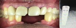 Lower front teeth replaced with dental implants and zirconia bridge - Before