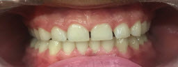 Zoom Advanced Whitening - Before