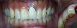 Front Smile Makeover done with Dental Implant & Metal Free Crown - Before
