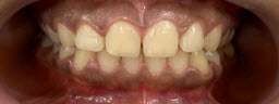 45 Minutes Instant Zoom Teeth Whitening - Before