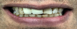 Smile Makeover with Whitening and Veneers Crowns Combination In 2 Visits Over 10 Days - Before