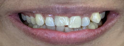 Smile Makeover with metal free crowns - Before
