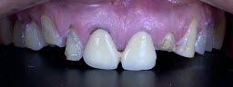 Smile Makeover with Zirconia Crowns - Before
