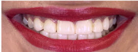 Smile Makeover with Porcelain Veneers Delhi - After Image