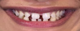 Smile Makeover with Porcelain Veneers Delhi - Before Image